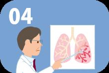 気管支拡張症を発症する。
