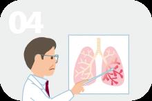 非結核性抗酸菌感染症への罹患
