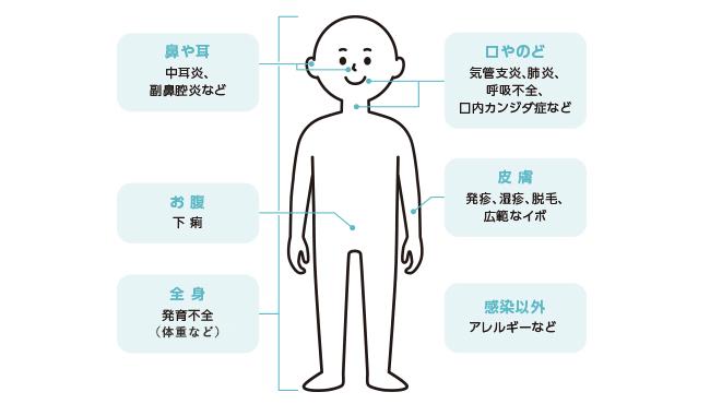 体のどこで症状が出やすいの?